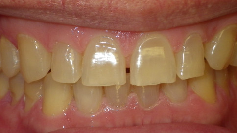 Zoom Bleaching, Invisalign, and anterior bonding