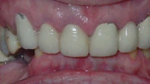 Full mouth reconstruction with dental implants & crowns